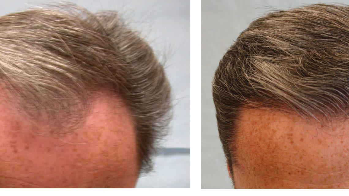 Comment éviter de subir une greffe de cheveux afro ?