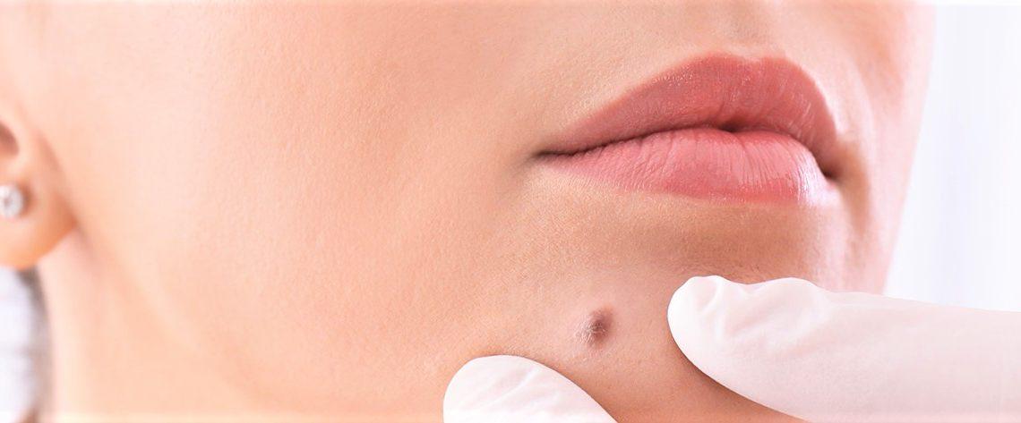 Chirurgie esthétique des tumeurs cutanées: les grains de beauté
